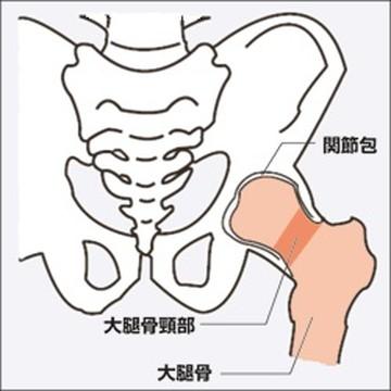 大腿骨頚部