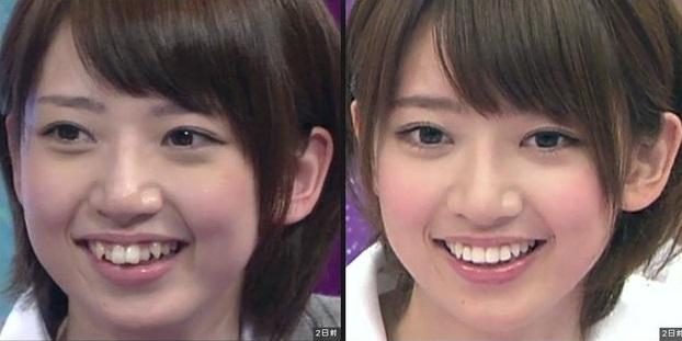 歯列矯正をした橋本奈々未さん